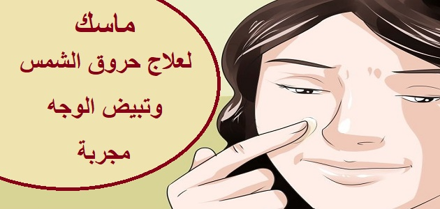 ماسك لعلاج حروق الشمس وتبيض الوجه