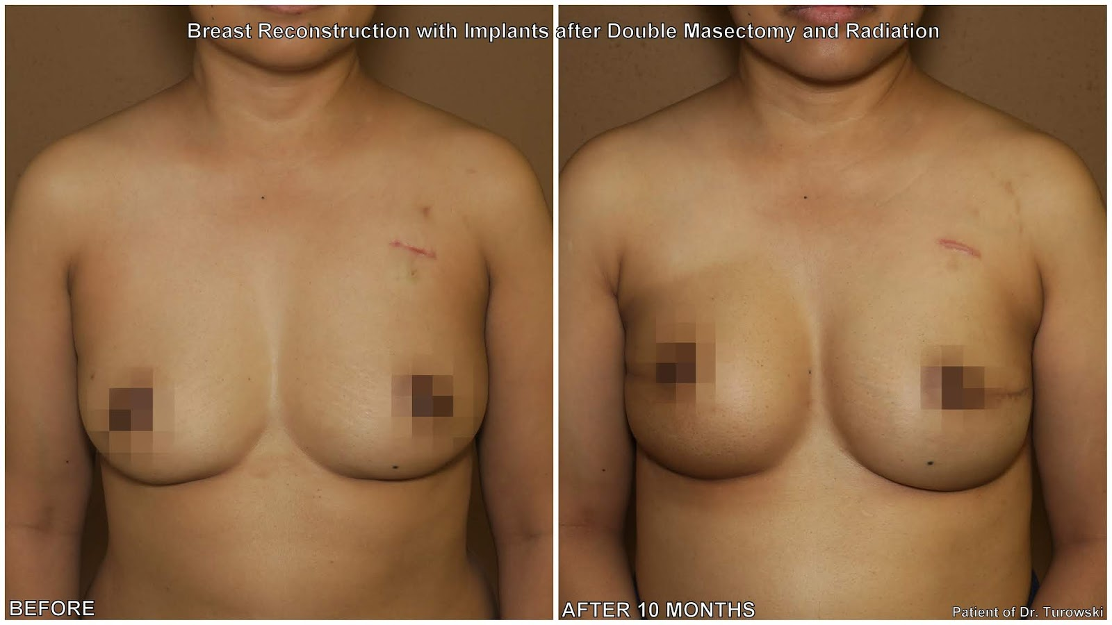 Seems brilliant breast reconstruction after radiation