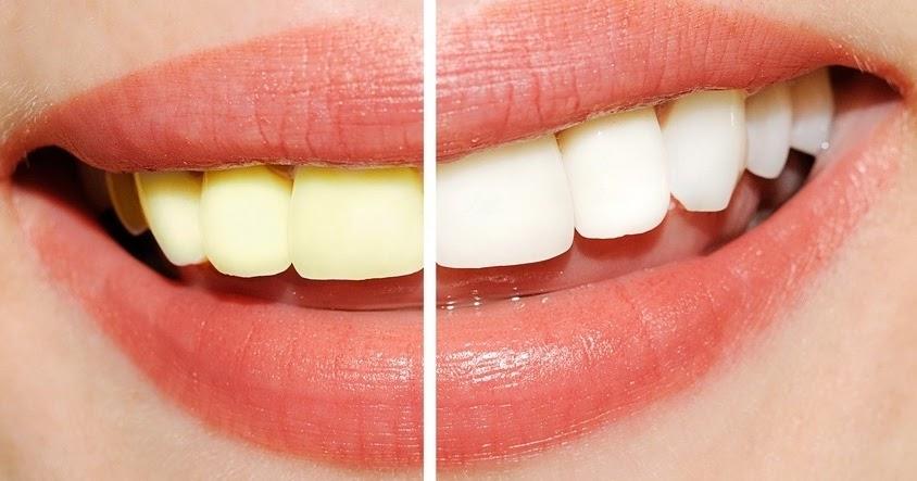 Cara Memutihkan Gigi Dalam 1 Hari Cara Memutihkan Gigi
