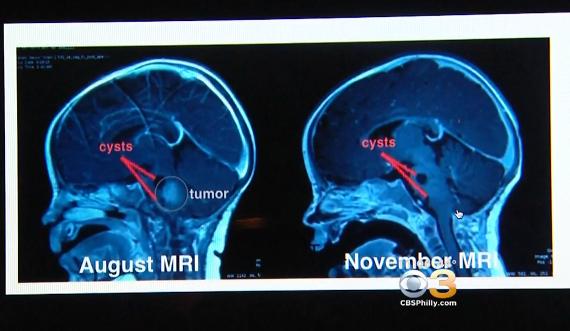 Kecupan Ajaib Paus Fransiskus Sembuhkan Bayi dari Tumor Otak Ganas