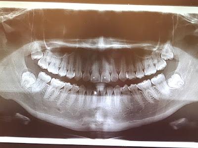 Dr. Wells 維恆牙醫診所--永和牙醫 植牙 矯正 微笑設計 美白