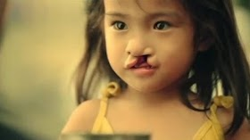Dibuang Orangtuanya Karena Terlahir dengan Bibir Sumbing, Gadis Ini Tumbuh Menjadi Sangat Cantik saat Dewasa