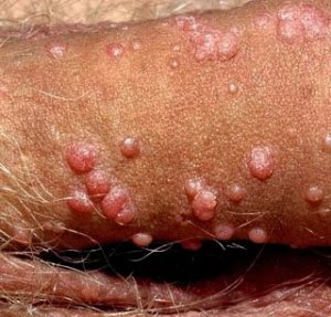 Pengobatan Alternatif Virus Hpv