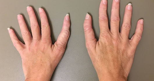 Families, Choices, and Untreated Triphalangeal Thumbs