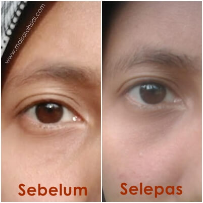 testimoni Micrite 3D All Use Eye Cream
