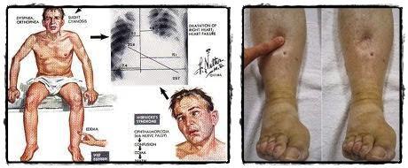 Obat Untuk Sembuhkan Penyakit Beri-Beri Basah