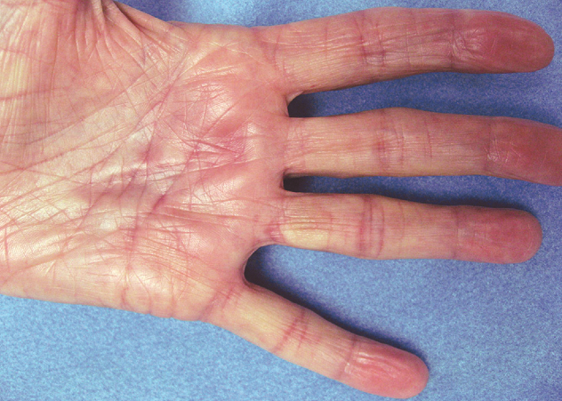 Schmerz Pain 疼痛: New treatments for Dupuytren contracture ...
