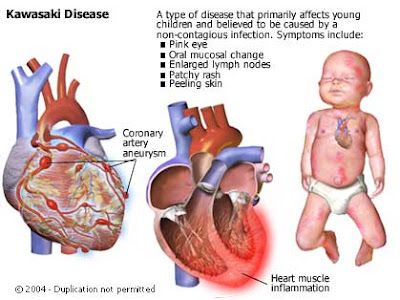 Kawasaki disease illness mucocutaneous lymph node syndrome