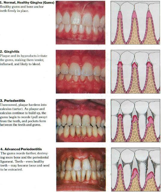 Gum Disease Michigan Www Drnemeth Com 248 357 3100