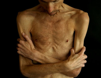 anorexia mirror male - photo #6