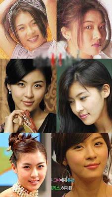 hey hey hey: [ Han Ji Won ] Before & After Plastic Surgery