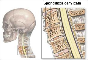 Spondiloza cervicala poate da dureri la articulatiile mainii