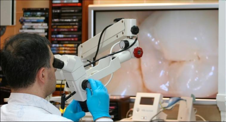 """Картинки по запросу """"Важность применения микроскопа в стоматологии"""""""