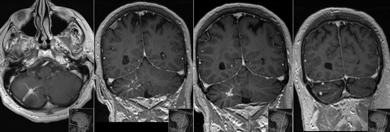 Radiology Mri Developmental Venous Anomaly