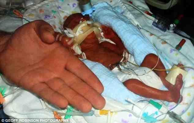 Boy Born At 23 Weeks Now Preparing For Pre School
