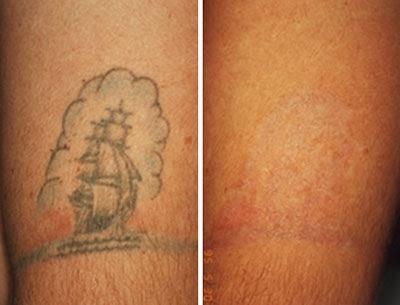 Gudu Ngiseng Blog Surgical Tattoo Removal