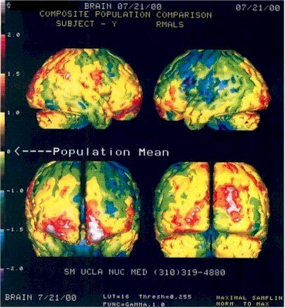 Neuro-Law and Brain Imaging: First check point
