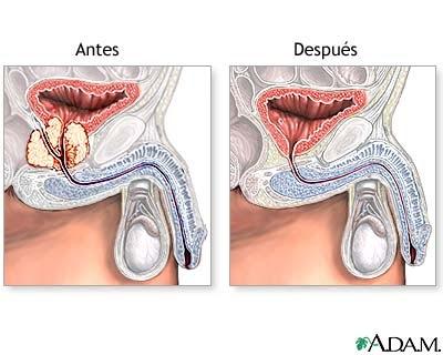 Cistita la prostata
