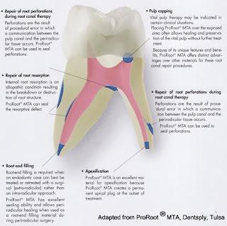 Dental materials: Mineral trioxide aggregate (MTA) in