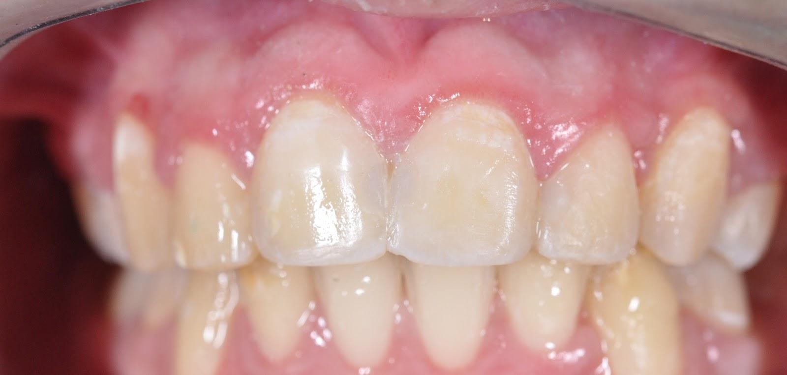 Odontología______________: Caries Interproximal