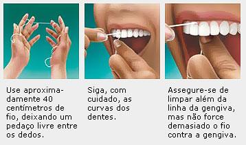 cf586eb35 Pequenos sangramentos podem ocorrer no início do uso do fio dental. Com o  uso