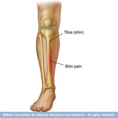 Medial Lower Leg Muscles Diagram 2000 Chrysler Town Country Transmission Vanderbilt Athletic Training: Shin Splints Defined