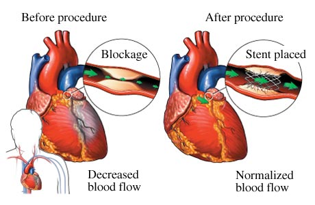Angioplasty in Mumbai (with Cost) -medicaltreatmentcost com