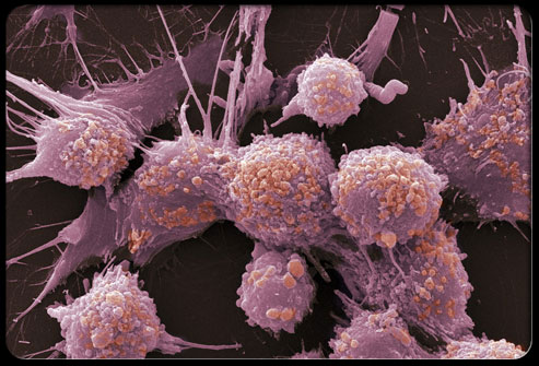 Health Amp Disease Prostate Cancer Pictures Slideshow