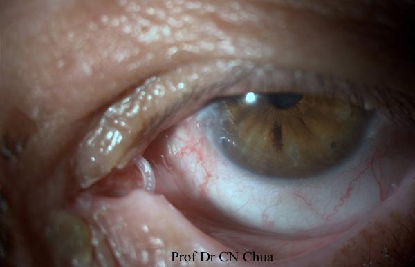 Eyelid Surgery By Prof Dr Cn Chua  U8521 U9418 U80fd  Ma U0026 39 Am I Think You Have Swallowed The Tube