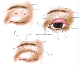 Eyelid Surgery By Prof Dr Cn Chua 蔡鐘能 Different Suture