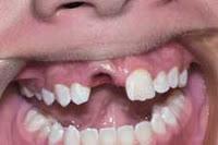 → Traumatismo dental (dente quebrado). O que fazer?