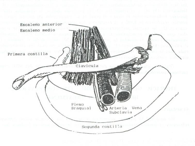 costilla cervical derecha complicaciones