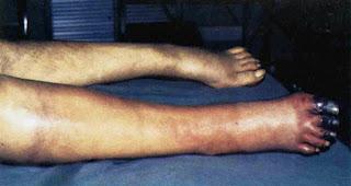 trombosis venosa en brazo sintomas