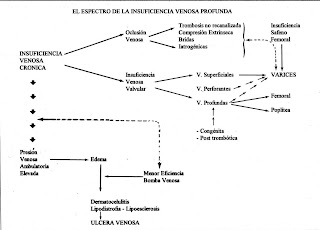 cirugía vascular insuficiencia venosa