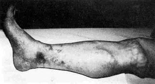 Vasculitis ardor en los pies