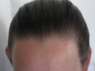 My Receding Hairline Experience Hair Loss Regrowth