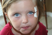 Little girl with butterfly stitches her left eye, before Daxton's adoption