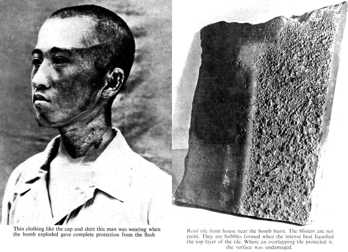 What Are Neutral Mutations Nuclear Radiation Burns Www Pixshark Com Images