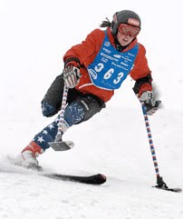 Photograph of skier with one leg