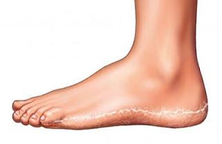 As eliminating foot fungus