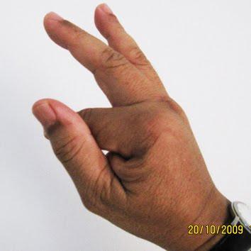 pin hole jari