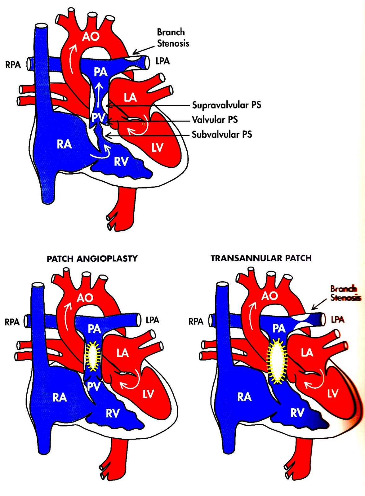 Pulmonary Stenosis   Heart defects for everyone