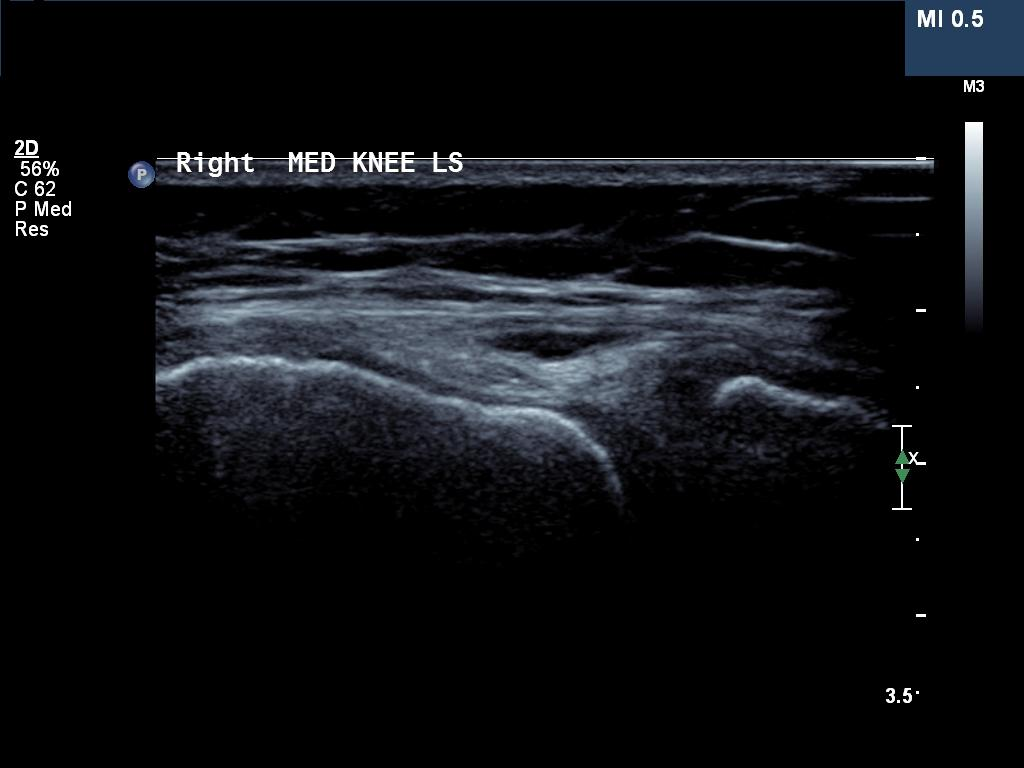 Radiology Cases Voshell S Bursitis