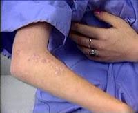 Kolda Sistemik Kızartılı Lupus