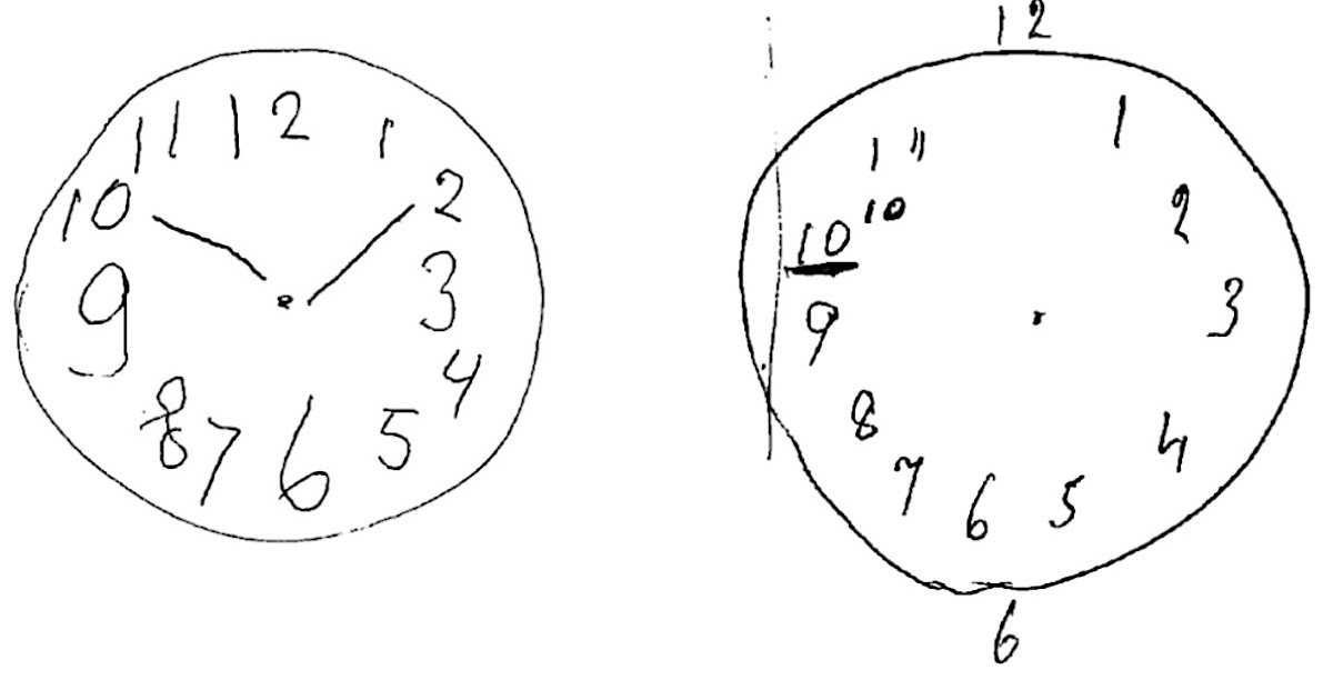 Clock Drawing Test For The Dementia Patient