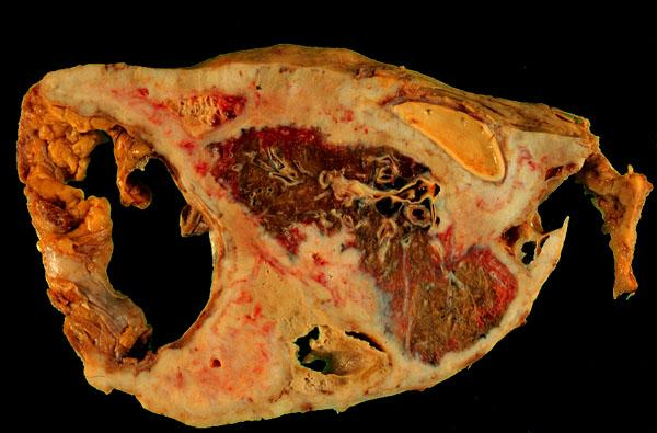 Mesothelioma Histopathology Lung Pleura Mesothelioma