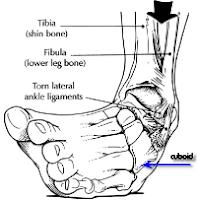Image result for cuboid bone ankle sprain