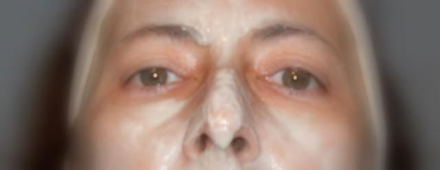 maschera viso lievito di birra