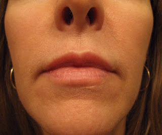Chemical Peels For Acne And Anti Aging Retin A Tretinoin