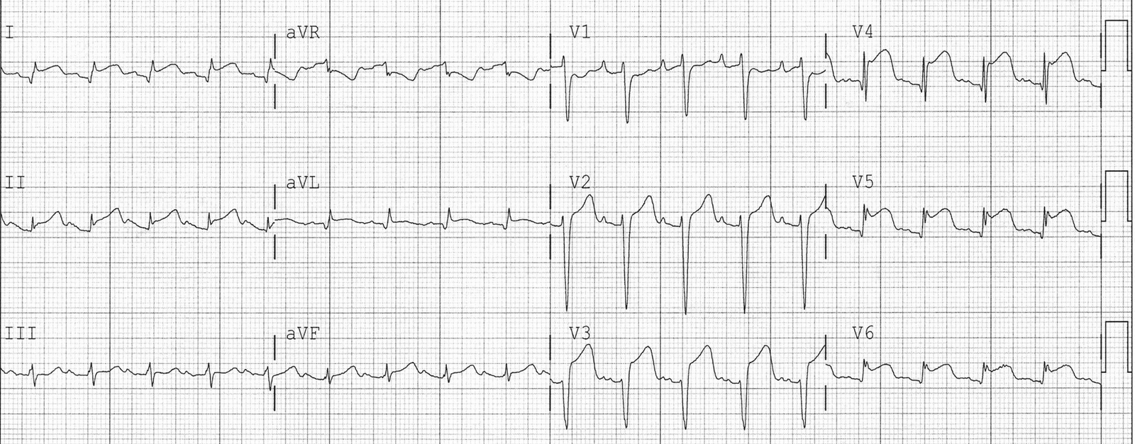 Dr. Smith's ECG Blog: Two more Cases of Takotsubo Stress